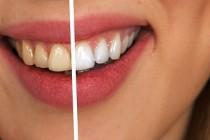 Bezbjedno izbijelite zube prirodnim preparatima