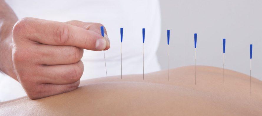 Šta liječi akupunktura?